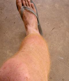 leg infection