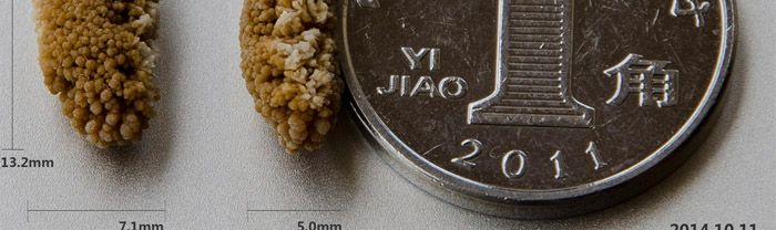 size of a kidney stone