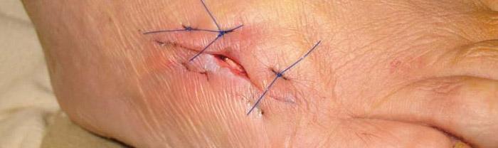 sting ray sting